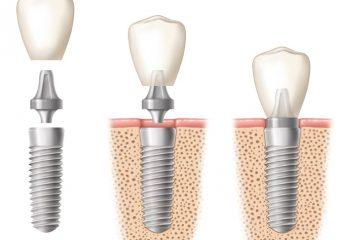 kakovostn implantati