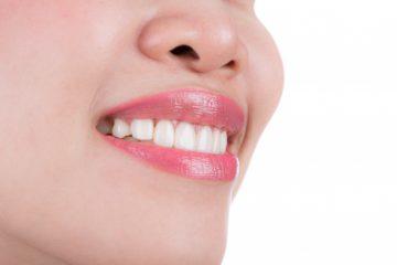 zobni vsadki akcija